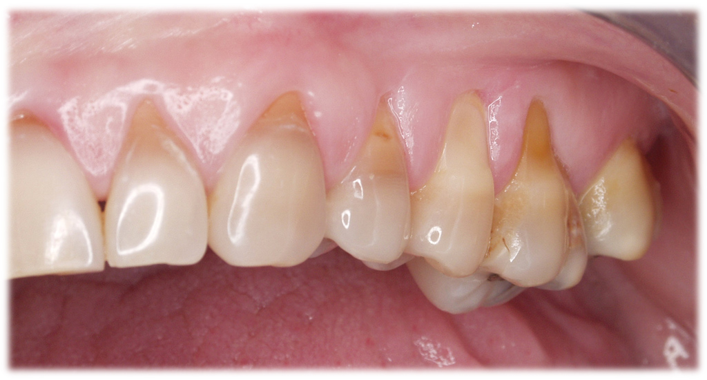 recesion gingival